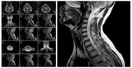 cervicales: La resonancia magnética de la columna cervical. Los discos vertebrales de resonancia magnética en diferentes puntos de vista
