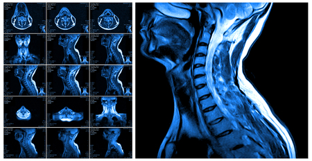 Magnetic resonance imaging of the cervical spine. MRI vertebral discs in different views