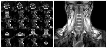 resonance: Magnetic resonance imaging of the cervical spine. MRI vertebral discs in different views