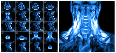 resonancia magnetica: Magnetic resonance imaging of the cervical spine. MRI vertebral discs in different views