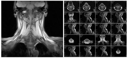 imaging: Magnetic resonance imaging of the cervical spine. MRI vertebral discs in different views