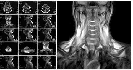 Rezonans magnetyczny kręgosłupa szyjnego. MRI kręgosłupa tarcze w różnych widokach Zdjęcie Seryjne