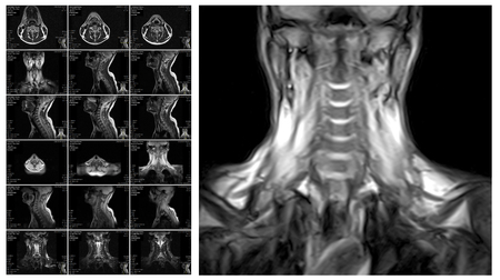 cords: Magnetic resonance imaging of the cervical spine. MRI vertebral discs in different views