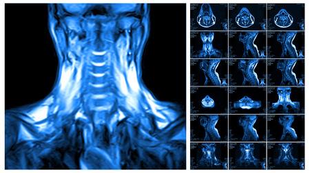 resonancia magnetica: La resonancia magn�tica de la columna cervical. Los discos vertebrales de resonancia magn�tica en diferentes puntos de vista