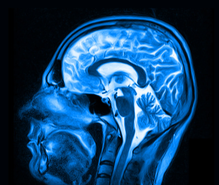 abnormalities: Magnetic resonance imaging of the brain with no visible abnormalities. Stock Photo