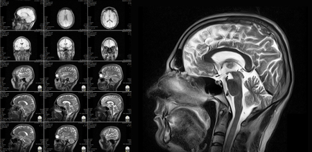 abnormalities: Magnetic resonance imaging of the brain with no visible abnormalities. MRI in different views