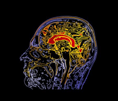 Mapa topográfico MRI del cerebro humano. Ilustración de vector