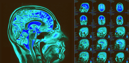 Magnetic resonance imaging of the brain. MRI scan Stock Photo - 118729176
