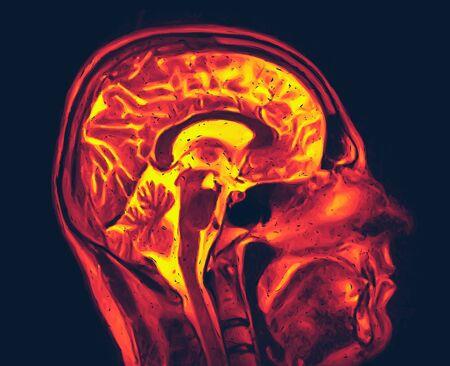 Imagen de resonancia magnética del cerebro sin anomalías visibles. Ilustración de vector de resonancia magnética Ilustración de vector