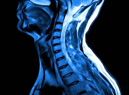 Imagen de resonancia magnética de la columna cervical. Discos vertebrales de resonancia magnética en diferentes vistas