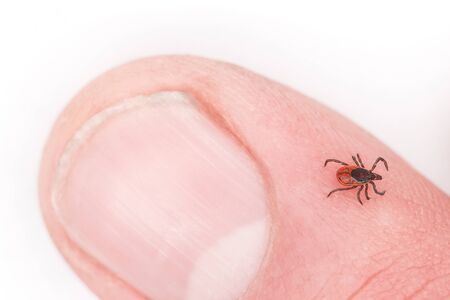 Tick ​​sits on the skin of man. Tick ​​bites a person. Danger of tick bites. Infectious tick. Mite crawls on a person's finger. Danger of infection with encephalitis.