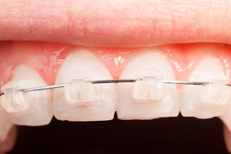 crooked teeth: Top tooth alignment with ceramic braces Stock Photo