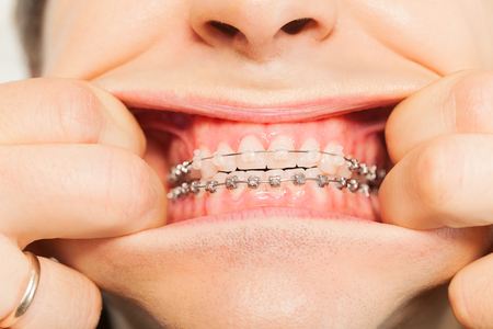 crooked teeth: Mans opened mouth with ceramic and metal braces