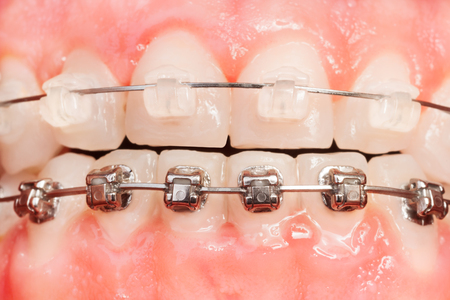 Tooth alignments with ceramic and metal braces