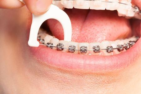 Homme avec des bretelles utilisant du fil dentaire pour l'hygiène