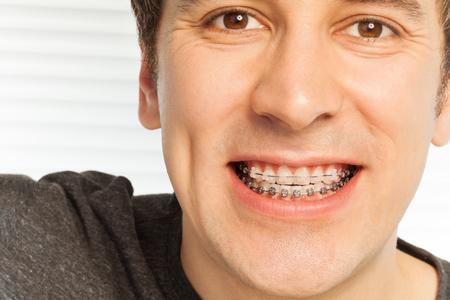 그의 치아에 치과 교정기와 젊은 남자