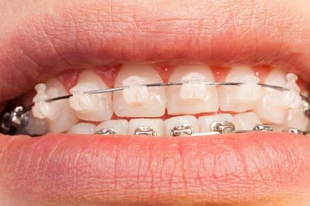 orthodontic: Ceramic and metal orthodontic cases on teeth Stock Photo