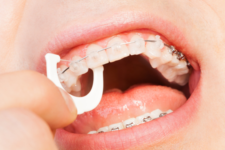 flaws: Picture of man with braces using dental floss for upper jaw hygiene