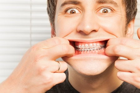 orthodontic: Portrait of cute young man with orthodontic braces