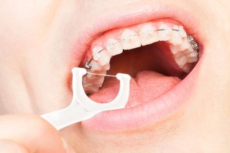 Man with dental braces flossing teeth
