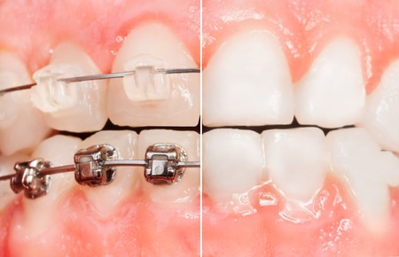 Split view of braces and tooth before them