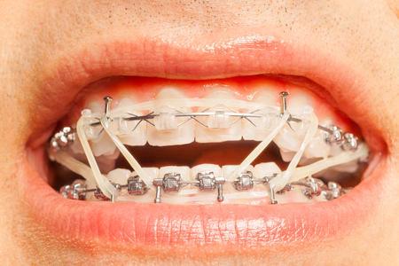 Dental braces with orthodontic correction rings on