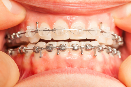 installed: Jaw with braces installed on teeth closeup view Stock Photo