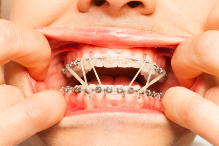 painfully: Painfully wearing orthodontic braces and rings