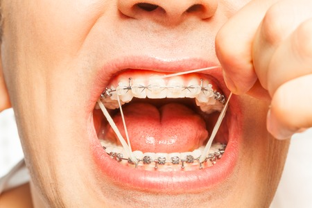 Rubber strings for teeth correction with braces