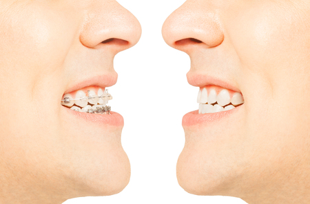 flaws: Before and after orthodontic treatment with braces