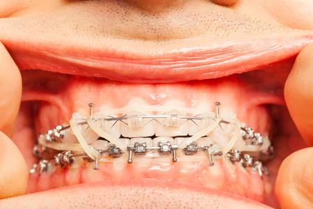 flaws: Close-up of man mouth with braces and rubber rings