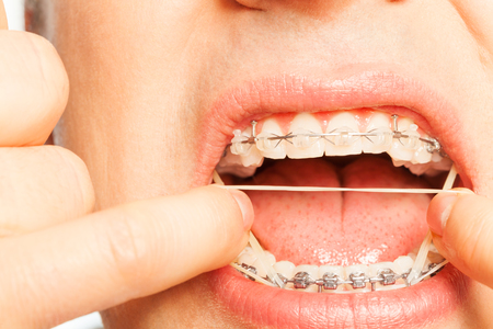 flaws: Man put orthodontic ring rubber string on braces