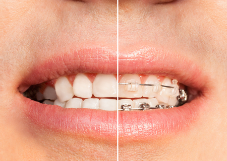 Teeth with and without dental braces full mouth Stock Photo