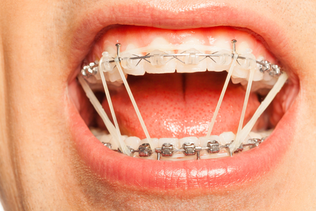 Dental braces with orthodontic latex rings on