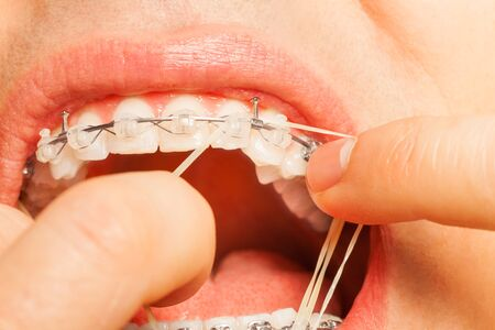 flaws: Putting rubber string on braces hooks teeth Stock Photo