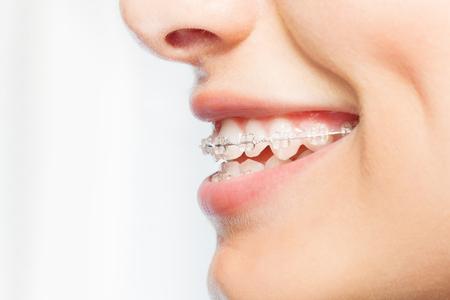 명확한 괄호와 여자 미소의 측면보기 사진