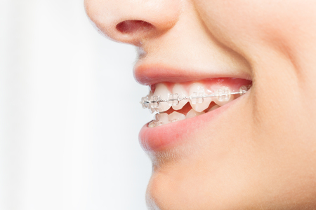 Side view picture of woman smile with clear braces