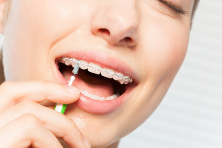 Woman cleaning braces using interdental brush