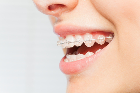 Womans smile with clear dental braces on teeth Imagens
