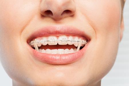 Female mouth with orthodontic elastics on braces Stock Photo