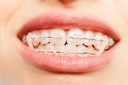 Teeth with dental braces and elastics full mouth Stock Photo