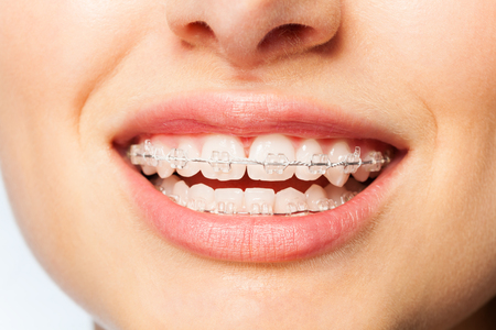 Healthy smile woman with clear brackets Standard-Bild