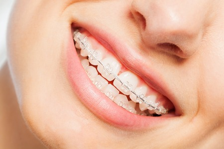 Happy smile of young woman with dental braces Archivio Fotografico