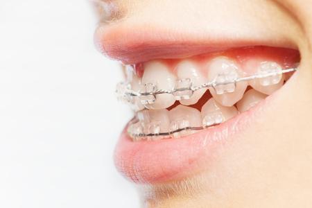 明確なかっこで歯の側面ビュー画像