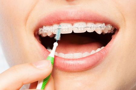 Female mouth with dental braces and interdental brush