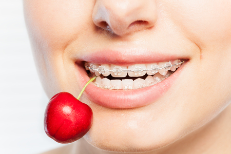 Close-up of womans teeth with clear orthodontic brackets, biting off ripe cherry