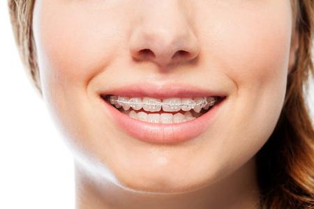 Happy womans smile with orthodontic clear braces Zdjęcie Seryjne