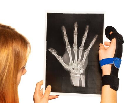 Woman with bandaged finger reading an x-ray Imagens
