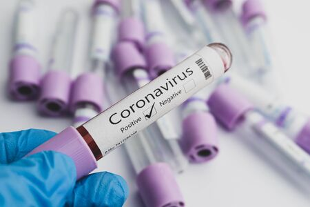 Blood test samples for presence of coronavirus (COVID-19) tube containing a blood sample that has tested positive for coronavirus. Covid-19 concept.