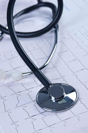 phonendoscope: stethoscope on the chart electrocardiogram Stock Photo
